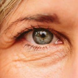 Eyelid & Facial Aesthetics in Charlottesville, offers Blepharoplasty which repairs drooping eyelids and gives a more youthful look.