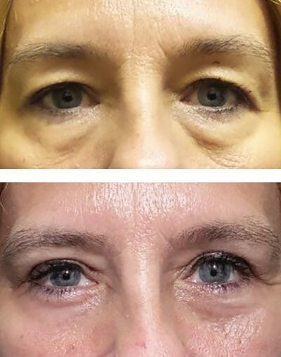 lower eyelid bags removed