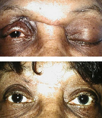 Trauma repair with blepharoplasty after sinus surgery - before and after