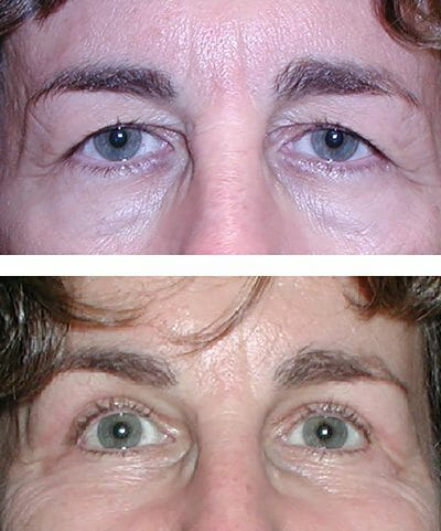 Upper eyelid blepharoplasty relieves heaviness and makes room for makeup