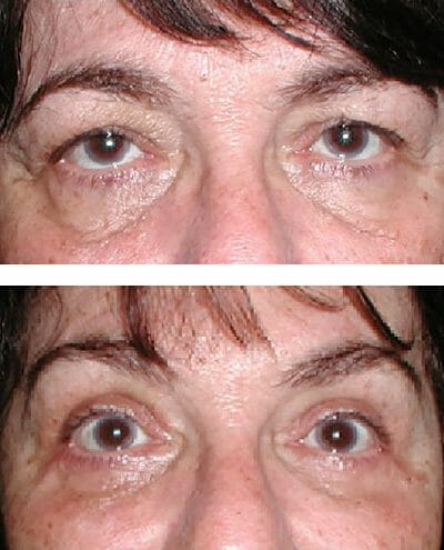 Lateral brow lift and ptosis repair improve appearance and vision
