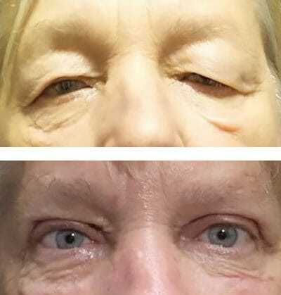 Upper eyelid blepharoplasty and direct lateral brow lift