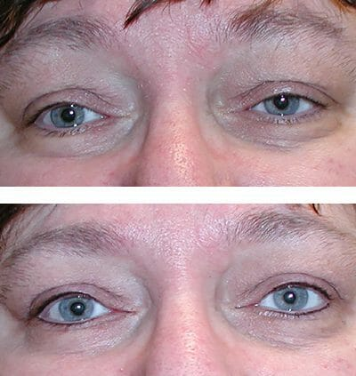 Eyes come alive after micropigmentation