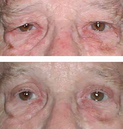 Direct brow lift and blepharoplasty (before and after)