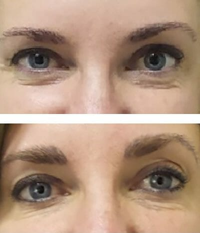 Microblading thickens eyebrows - before and after