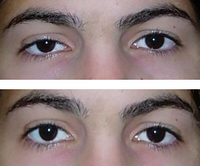 Right upper eyelid repair restores symmetry and improves appearance