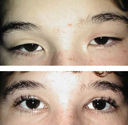 blepharoplasty and medial canthoplasty - before and after image