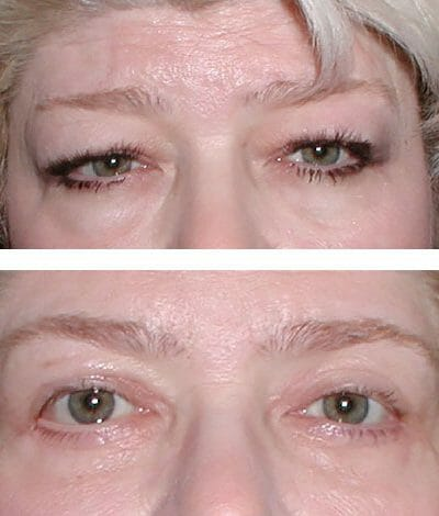 Lower eyelid bags removed - before and after photos