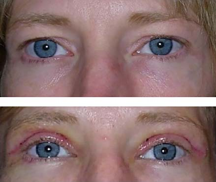 blepharoplasty quickly reduces hooding - 5 days after surgery