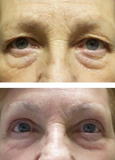 blepharoplasty brow lift (before and after)
