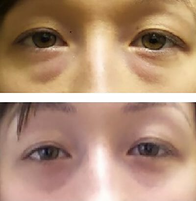 remove lower eyelid bags in a young patient