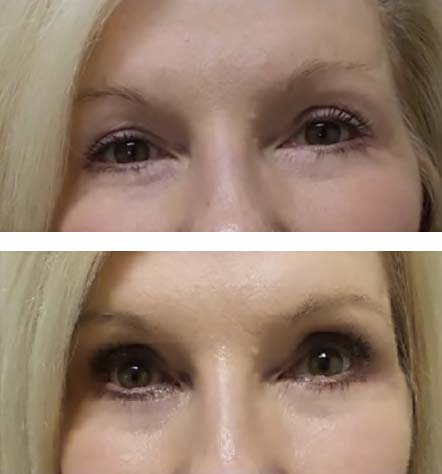 Upper eyelid blepharoplasty relieves heaviness - before and after photos