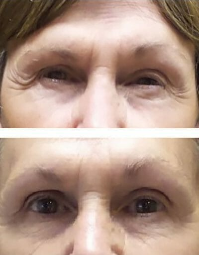 brow lift blepharoplasty - before/after