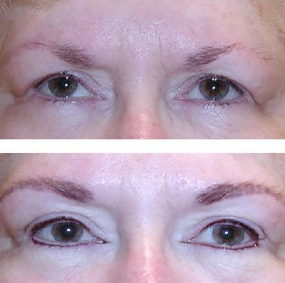brow enhancement and permanent eyeliner