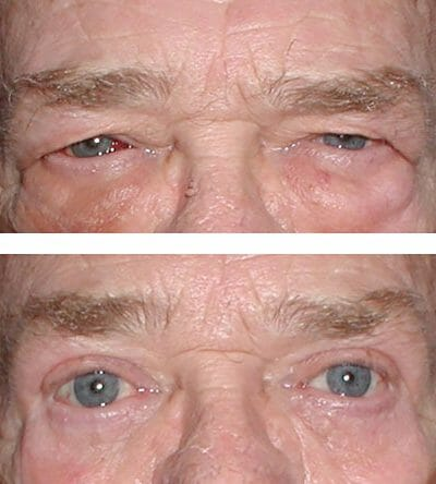 blepharoplasties dramatically restore vision for this patient - compare the before and after image