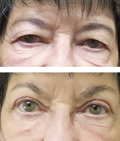blepharoplasty improved vision with brow lift