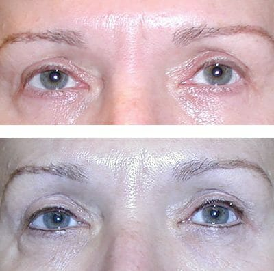micropigmentation before and after - Charlottesville, Virginia