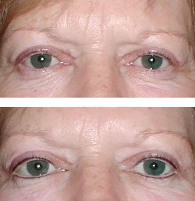permanent eyeliner with micropigmentation