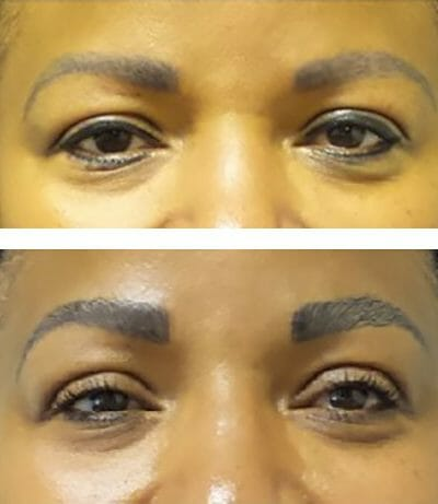 Microblading to thicken and reshape the eyebrows