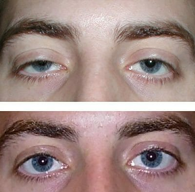 Bilateral ptosis repair - before and after