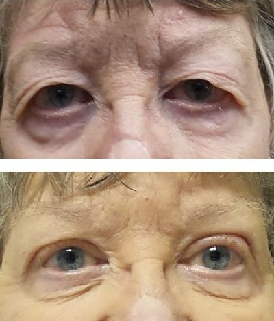 Asian blepharoplasty of the upper lids. Symmetry and vision improved