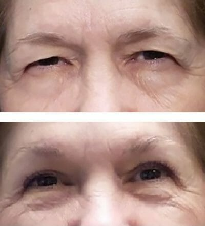 direct brow lift blepharoplasty before after