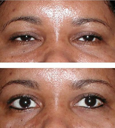 permanent eyeliner - before and after