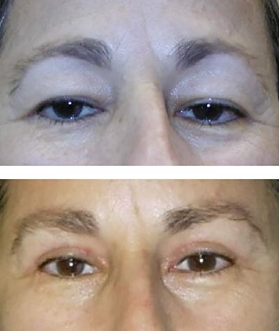 lateral direct brow lift reduced hooding - before after