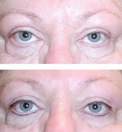 Micropigmented eyeliner - before and after image