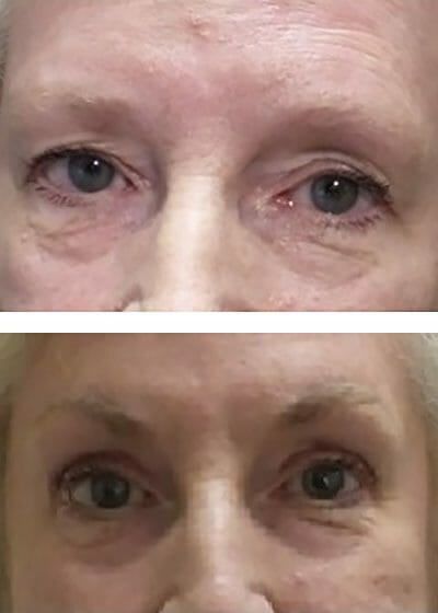 Light pigment match light complexion for these permanent eyebrows