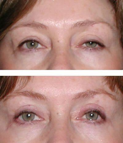 Left drooping eyelid repair improves vision and symmetry