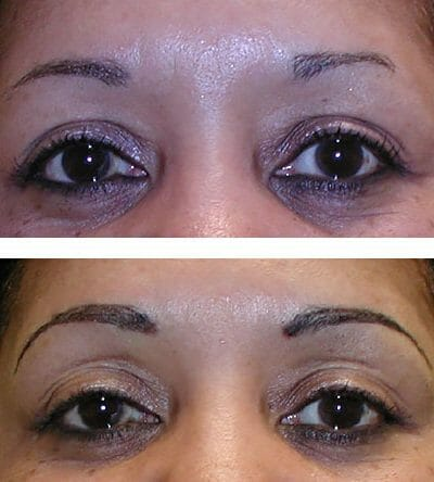 restore eyebrows with micropigmentation (before and after)