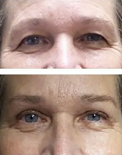 blepharoplasty before after surgery