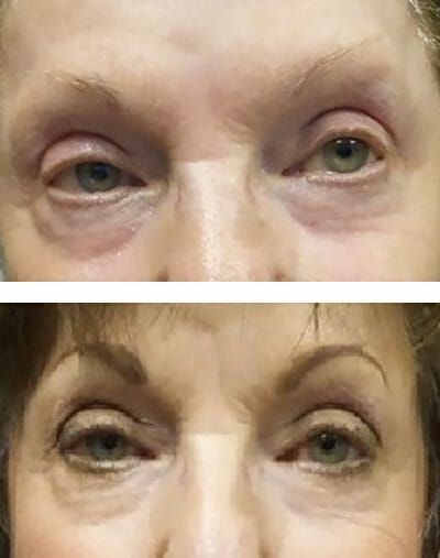 Micropigmented permanent eyebrows create a dramatic look