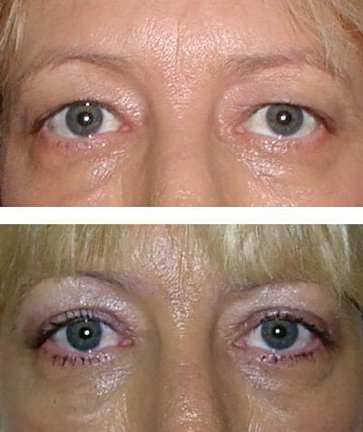 Removal of the eyelid fold makes room for makeup and reduces heaviness - before and after blepharoplasty surgery