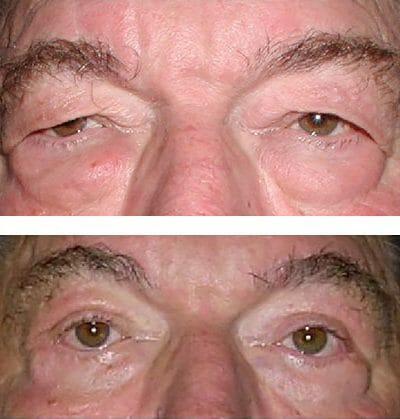 blepharoplasty brow lift before and after surgery