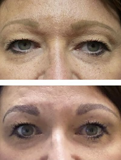 Permanent eyebrows reshaped and recolored with microblading