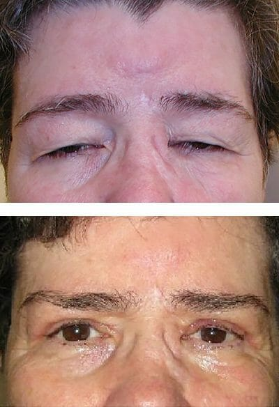before and after blepharoplasty surgery in Charlottesville, VA
