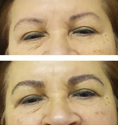 Widening the medial eyebrow and thickening with permanent makeup