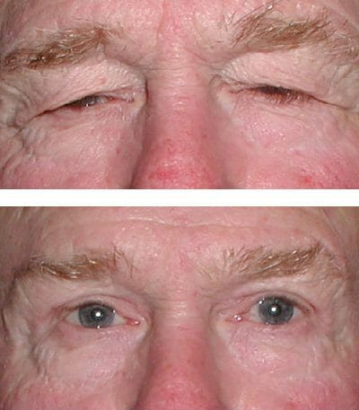 Direct brow lift before and after blepharoplasty