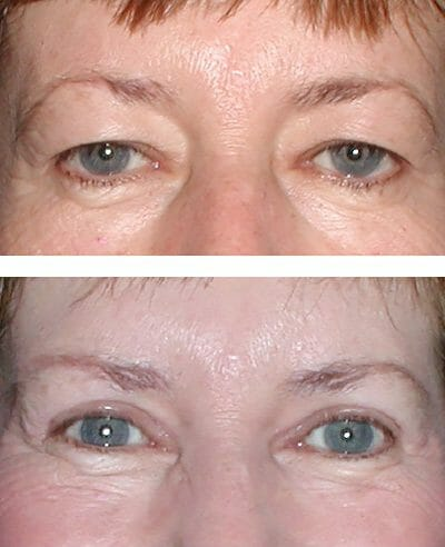 before and after blepharoplasty by Dr. Sara Kaltreider in Charlottesville, VA
