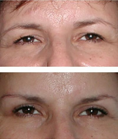 blepharoplasty surgery before and after photo - improved brow contour and eyelid levels