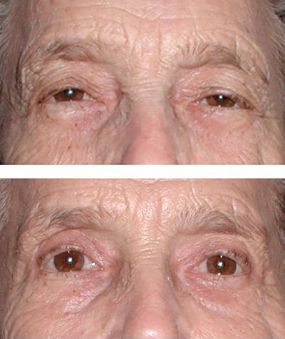 droopy eyelids open when the brows are lifted and the excess lid skin is removed with blepharoplasty brow lift surgery