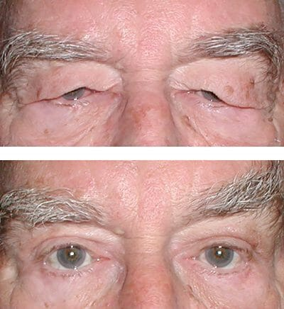 Down-sloping brows repaired after direct lateral brow lift blepharoplasty