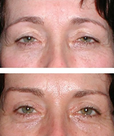 direct brow lift and blepharoplasty improve vision and appearance - before and after
