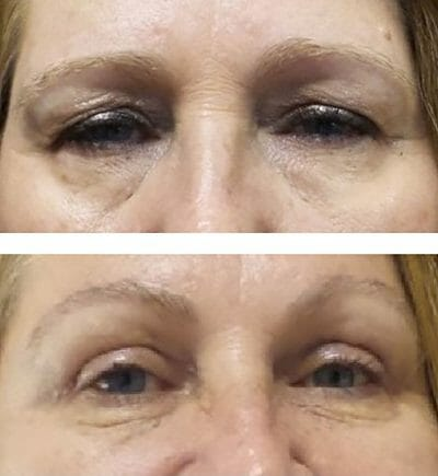 appearance improved with Down-sloping brows and more open eyelids are noted after direct lateral brow lift and blepharoplasty - before and after surgery photos