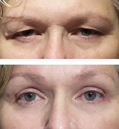 Tired, heavy eyelids improved after lifting the brows and removing skin in eyelid fold