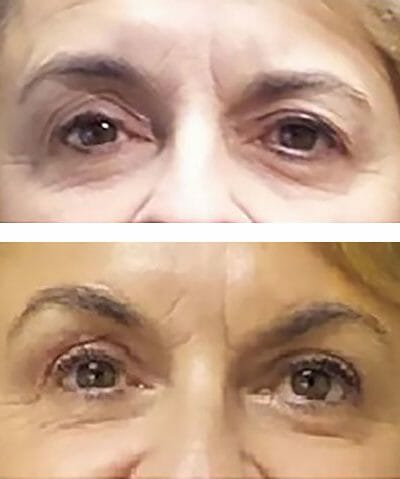 blepharoplasty, brow lift and MiXto CO2 laser resurfacing yield younger looking eyes and brow