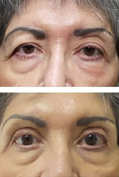 blepharoplasty and direct brow lift improve eyelid position