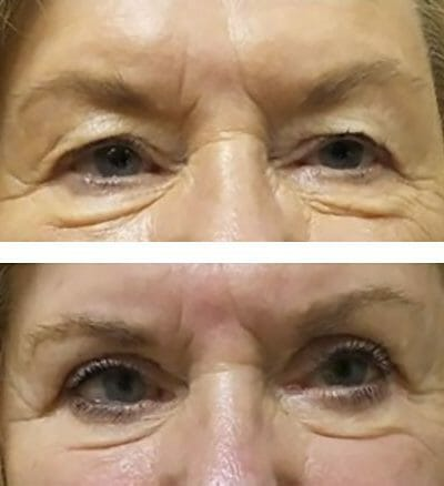 heavy looking brow improved after blepharoplasty and brow lift